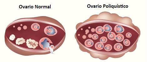 Síndrome de ovarios poliquísticos y alimentación
