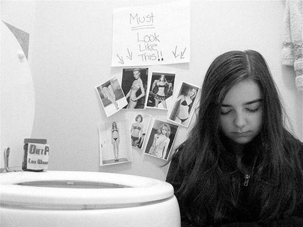 La bulimia: un trastorno frecuente en consulta