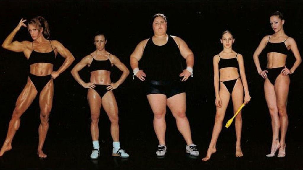 Trastornos alimentarios en deportistas